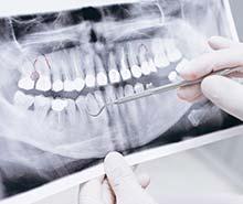 leczenie-kanalowe-dentysta-torun-profesjonalnie-szybko