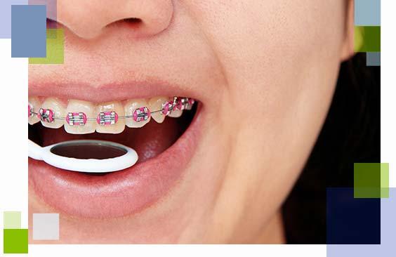 ortodoncja-stomatolog-torun-aparaty-korekcyjne-na-zeby-dentysta-torun