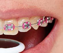 ortodoncja-stomatolog-torun-aparaty-korekcyjne-na-zeby
