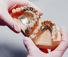 protetyka-dentysta-torun-mosty-sztuczne-szczeki
